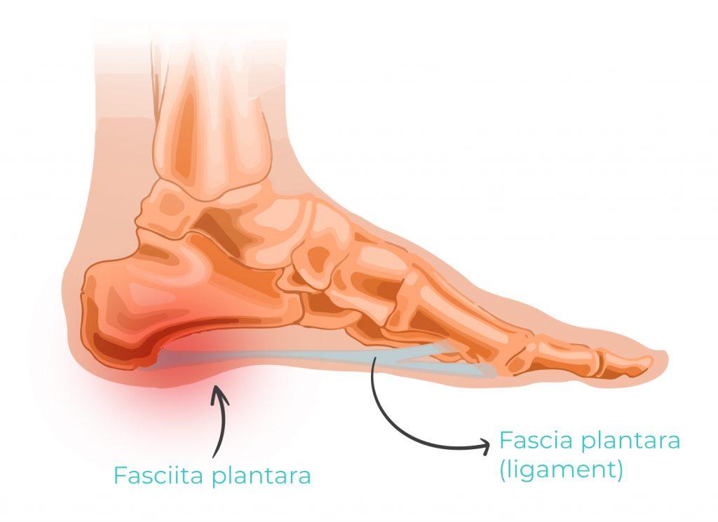artroza articulațiilor arcului piciorului)
